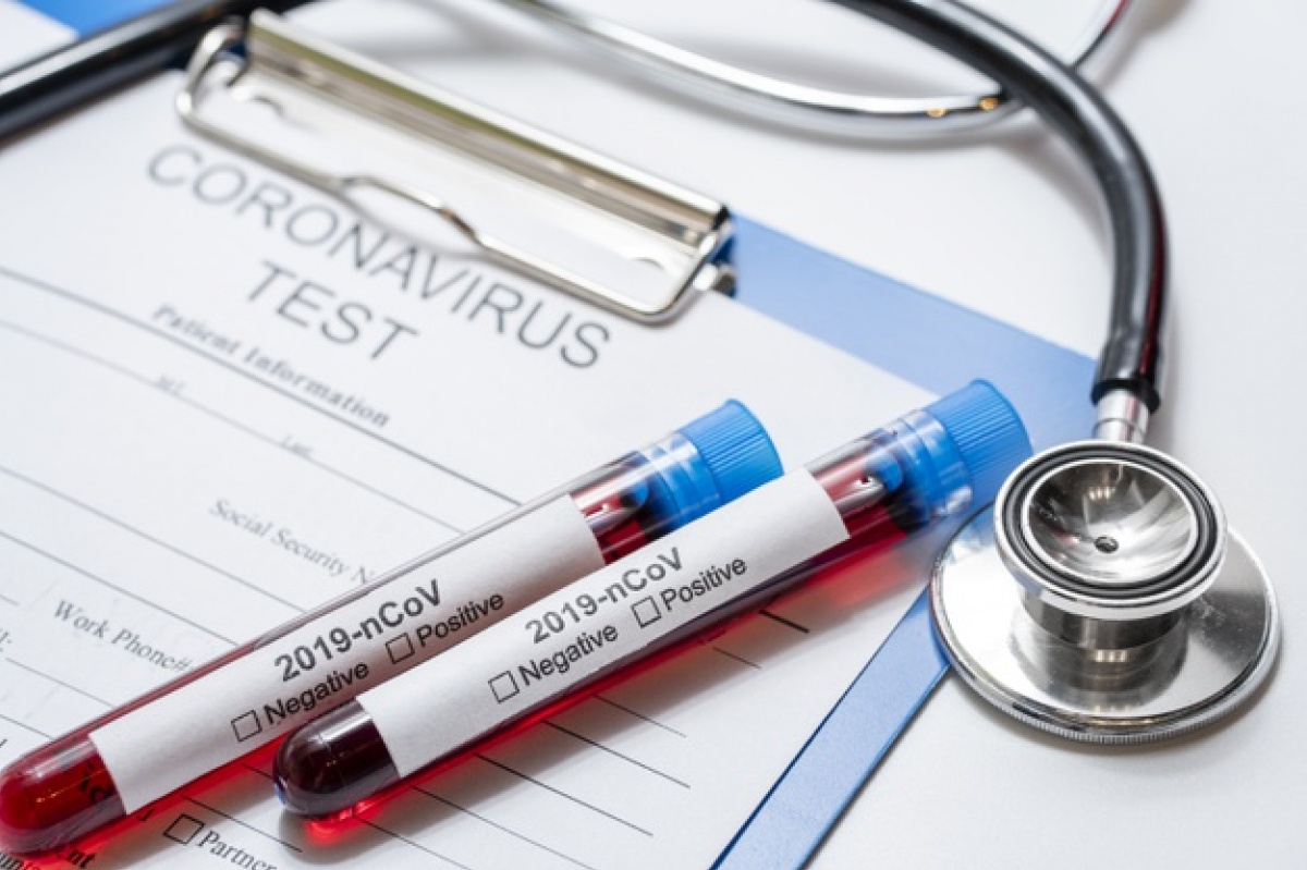 Ukraine, army, armed forces, Armed Forces of Ukraine, Coronavirus, COVID-19, coronavirus case, Coronavirus infection, coronavirus epidemic, coronavirus pandemic